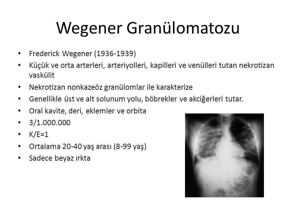 Wegener Granülomatozu Etiyoloji bilinmiyor 3/1.000.000 K/E=1 Ortalama 20-40 yaş arası (8-99 yaş) Sadece beyaz ırkta Otoimmün olduğu düşünülüyor C-ANCA (Circulating antineuthrophil cytoplasmic antibody) (1985)
