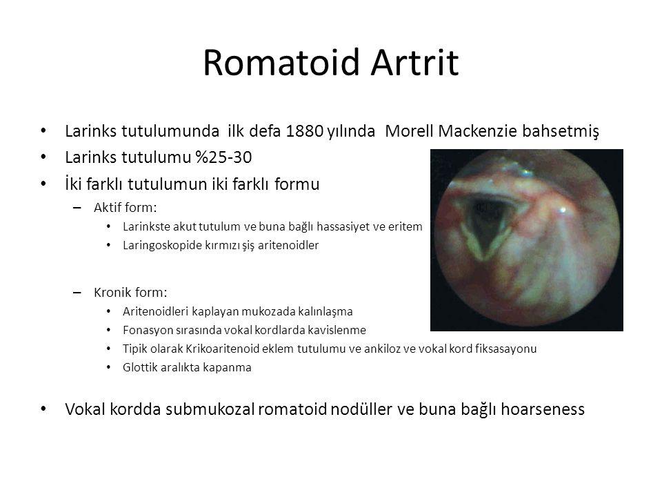 Romatoid Artrit Larinks tutulumunda ilk defa 1880 yılında Morell Mackenzie bahsetmiş Larinks tutulumu %25-30 İki farklı tutulumun iki farklı formu – A
