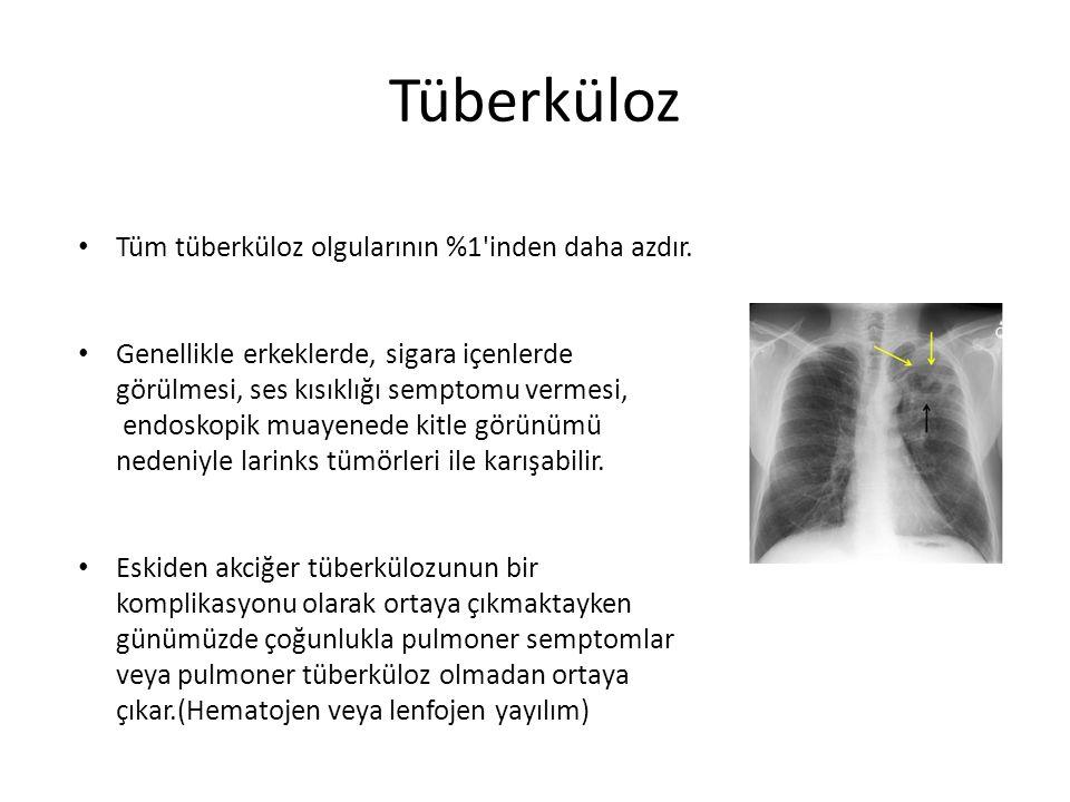 Tüberküloz Tüm tüberküloz olgularının %1'inden daha azdır. Genellikle erkeklerde, sigara içenlerde görülmesi, ses kısıklığı semptomu vermesi, endoskop