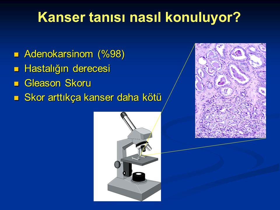 Adenokarsinom (%98) Adenokarsinom (%98) Hastalığın derecesi Hastalığın derecesi Gleason Skoru Gleason Skoru Skor arttıkça kanser daha kötü Skor arttık