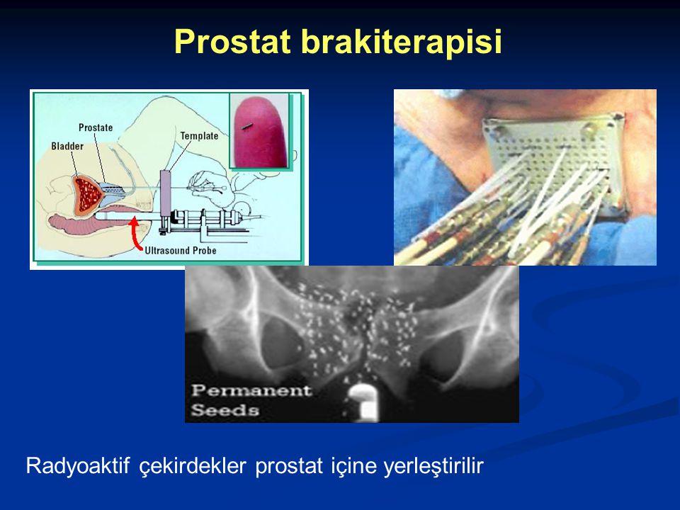Prostat brakiterapisi Radyoaktif çekirdekler prostat içine yerleştirilir