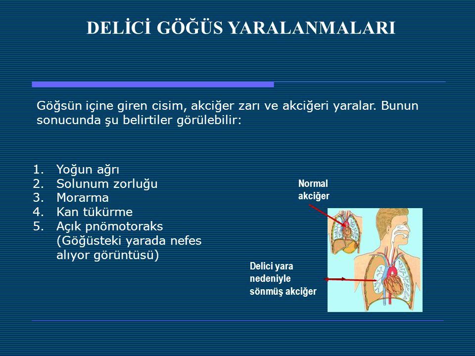 1.Yoğun ağrı 2.Solunum zorluğu 3.Morarma 4.Kan tükürme 5.Açık pnömotoraks (Göğüsteki yarada nefes alıyor görüntüsü) DELİCİ GÖĞÜS YARALANMALARI Göğsün