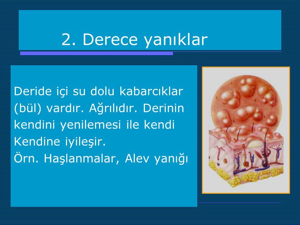 2. Derece yanıklar Deride içi su dolu kabarcıklar (bül) vardır. Ağrılıdır. Derinin kendini yenilemesi ile kendi Kendine iyileşir. Örn. Haşlanmalar, Al