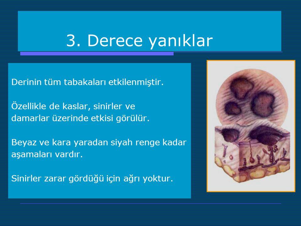 3. Derece yanıklar Derinin tüm tabakaları etkilenmiştir. Özellikle de kaslar, sinirler ve damarlar üzerinde etkisi görülür. Beyaz ve kara yaradan siya