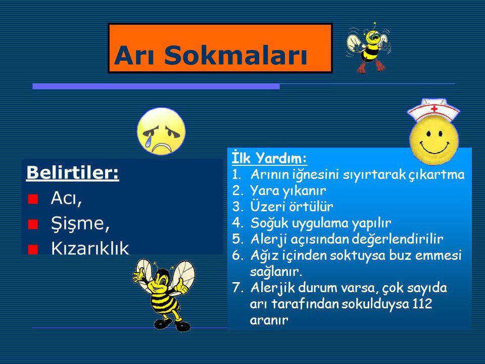 Arı Sokmaları Belirtiler: Acı, Şişme, Kızarıklık İlk Yardım: 1.Arının iğnesini sıyırtarak çıkartma 2.Yara yıkanır 3.Üzeri örtülür 4.Soğuk uygulama yap