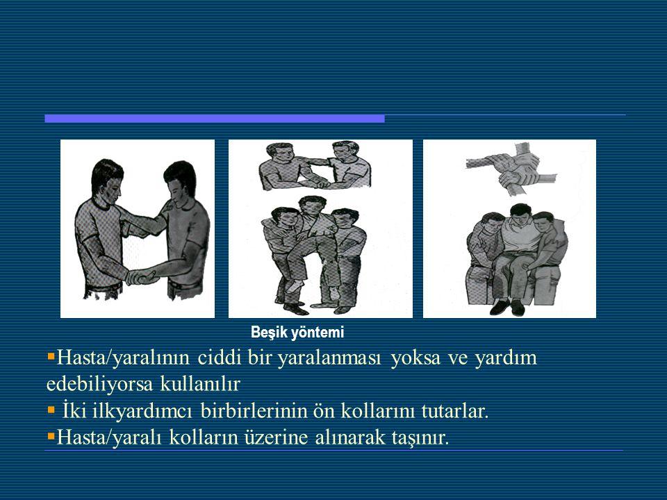 Beşik yöntemi  Hasta/yaralının ciddi bir yaralanması yoksa ve yardım edebiliyorsa kullanılır  İki ilkyardımcı birbirlerinin ön kollarını tutarlar. 