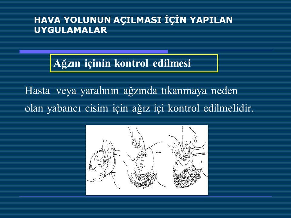 HAVA YOLUNUN AÇILMASI İÇİN YAPILAN UYGULAMALAR Ağzın içinin kontrol edilmesi Hasta veya yaralının ağzında tıkanmaya neden olan yabancı cisim için ağız