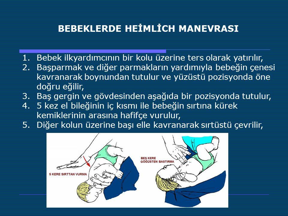 BEBEKLERDE HEİMLİCH MANEVRASI 1.Bebek ilkyardımcının bir kolu üzerine ters olarak yatırılır, 2.Başparmak ve diğer parmakların yardımıyla bebeğin çenes
