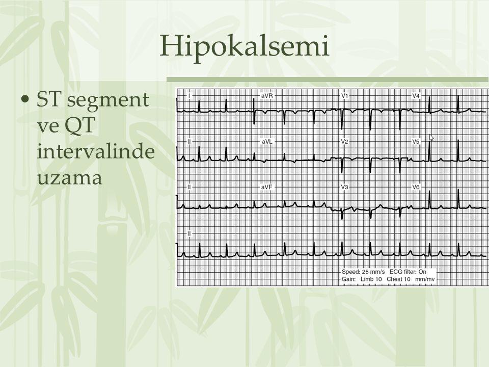 Hipokalsemi ST segment ve QT intervalinde uzama