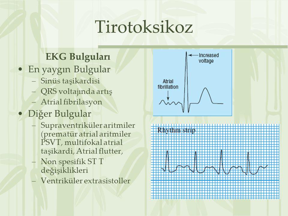 Tirotoksikoz EKG Bulguları En yaygın Bulgular –Sinüs taşikardisi –QRS voltajında artış –Atrial fibrilasyon Diğer Bulgular –Supraventriküler aritmiler (prematür atrial aritmiler PSVT, multifokal atrial taşikardi, Atrial flutter, –Non spesifik ST T değişiklikleri –Ventriküler extrasistoller