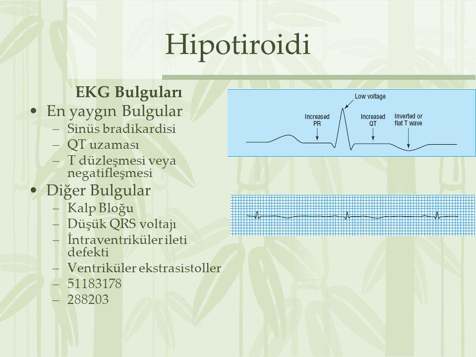 Hipotiroidi EKG Bulguları En yaygın Bulgular –Sinüs bradikardisi –QT uzaması –T düzleşmesi veya negatifleşmesi Diğer Bulgular –Kalp Bloğu –Düşük QRS voltajı –İntraventriküler ileti defekti –Ventriküler ekstrasistoller –51183178 –288203