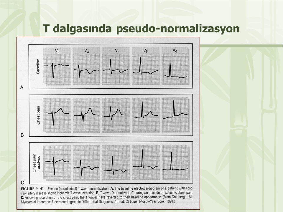 T dalgasında pseudo-normalizasyon