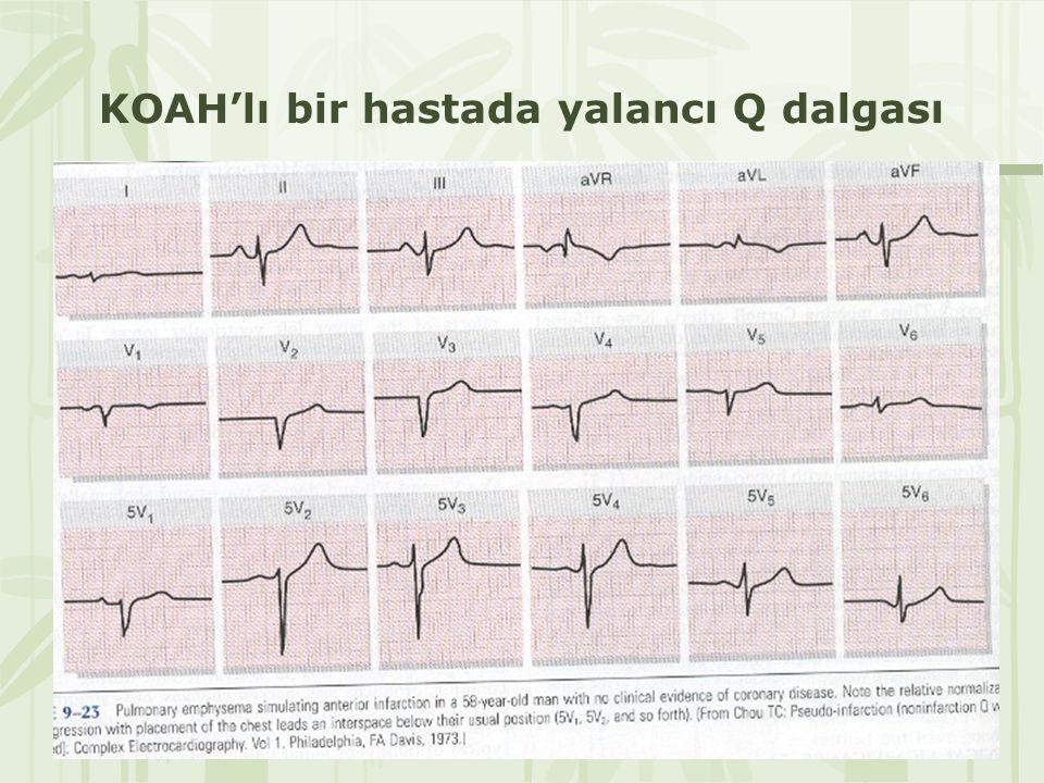 KOAH'lı bir hastada yalancı Q dalgası