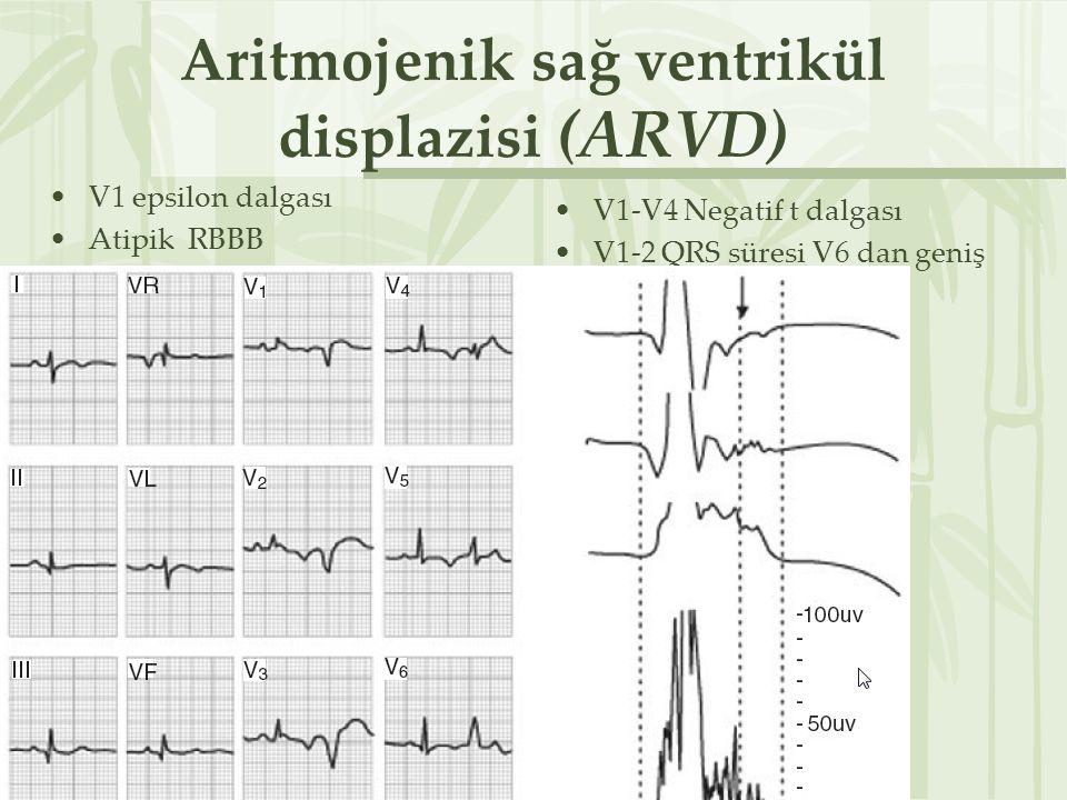 Aritmojenik sağ ventrikül displazisi (ARVD) V1 epsilon dalgası Atipik RBBB V1-V4 Negatif t dalgası V1-2 QRS süresi V6 dan geniş