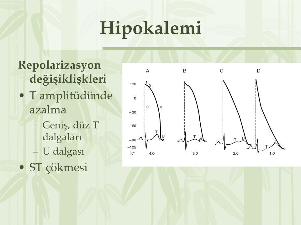 Hipokalemi Repolarizasyon değişiklişkleri T amplitüdünde azalma –Geniş, düz T dalgaları –U dalgası ST çökmesi