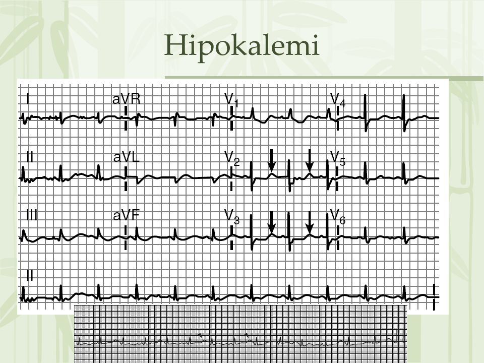 Hipokalemi