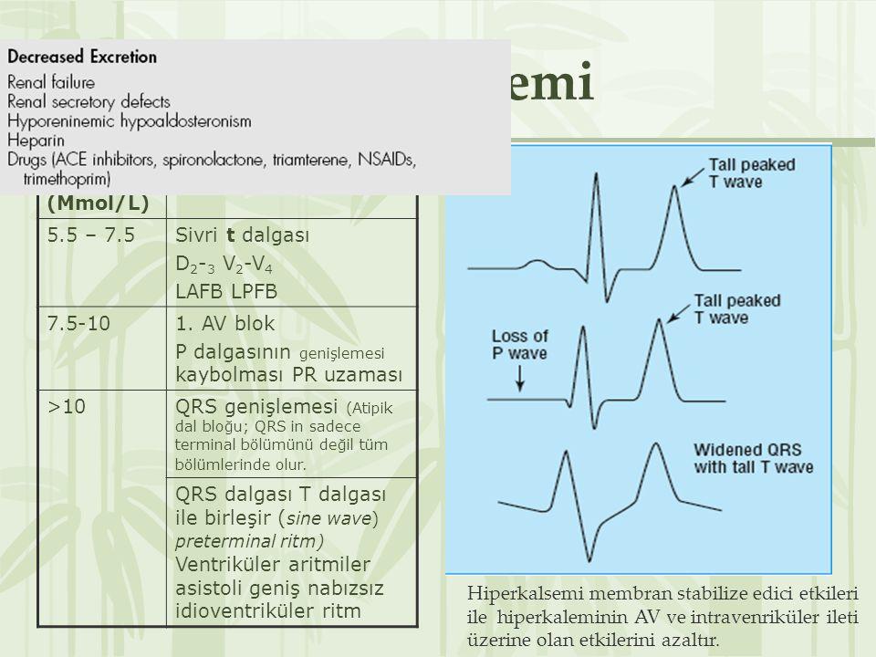 Hiperkalemi Serum K (Mmol/L) Önemli değişiklikler 5.5 – 7.5Sivri t dalgası D 2 - 3 V 2 -V 4 LAFB LPFB 7.5-101.