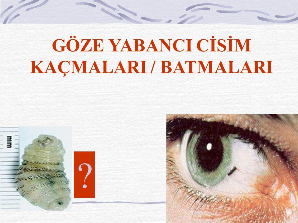 GÖZE YABANCI CİSİM KAÇMALARI / BATMALARI ?