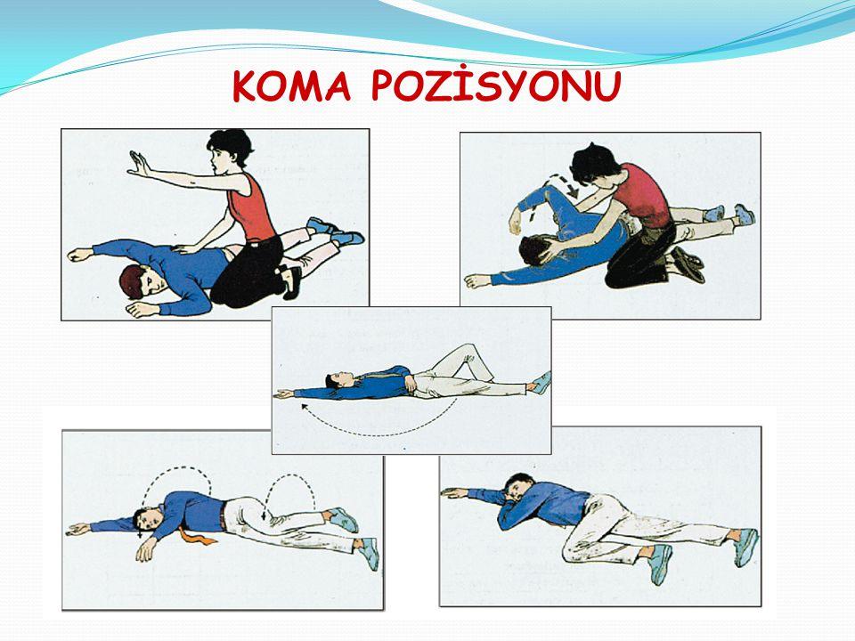 KANAMALAR Kanamanın ciddiyeti:  kanama hızı,  bölgesi, miktarı,  yaralının fiziksel durumu  yaşına bağlıdır.