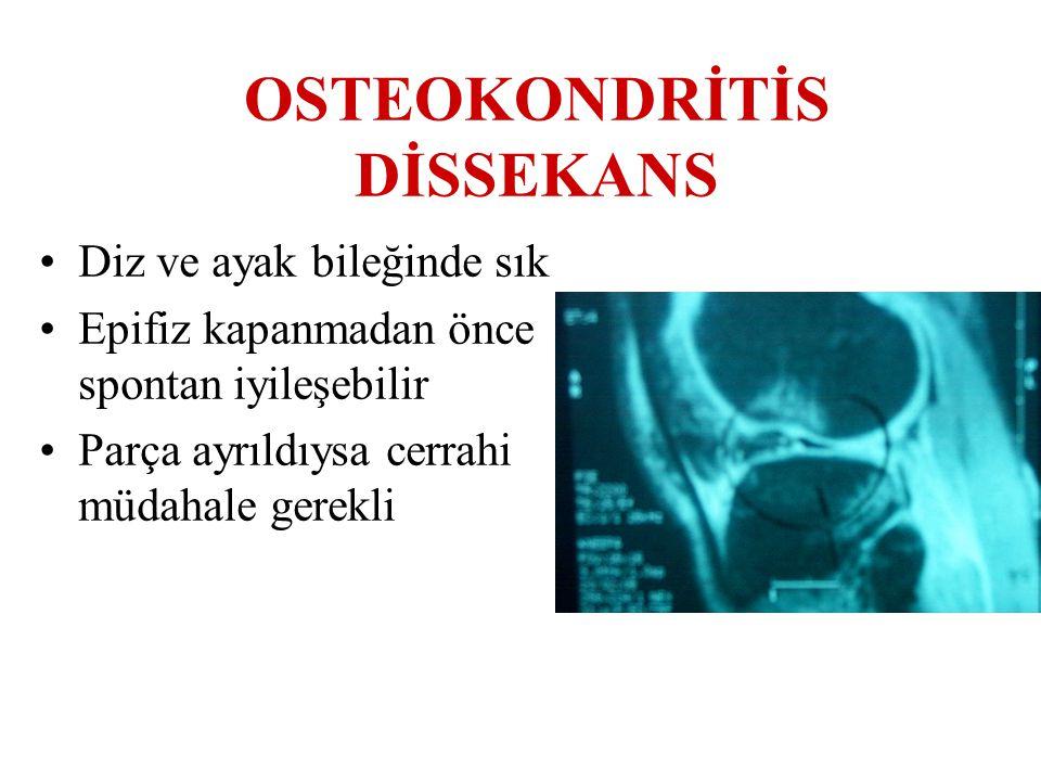 OSTEOKONDRİTİS DİSSEKANS Diz ve ayak bileğinde sık Epifiz kapanmadan önce spontan iyileşebilir Parça ayrıldıysa cerrahi müdahale gerekli