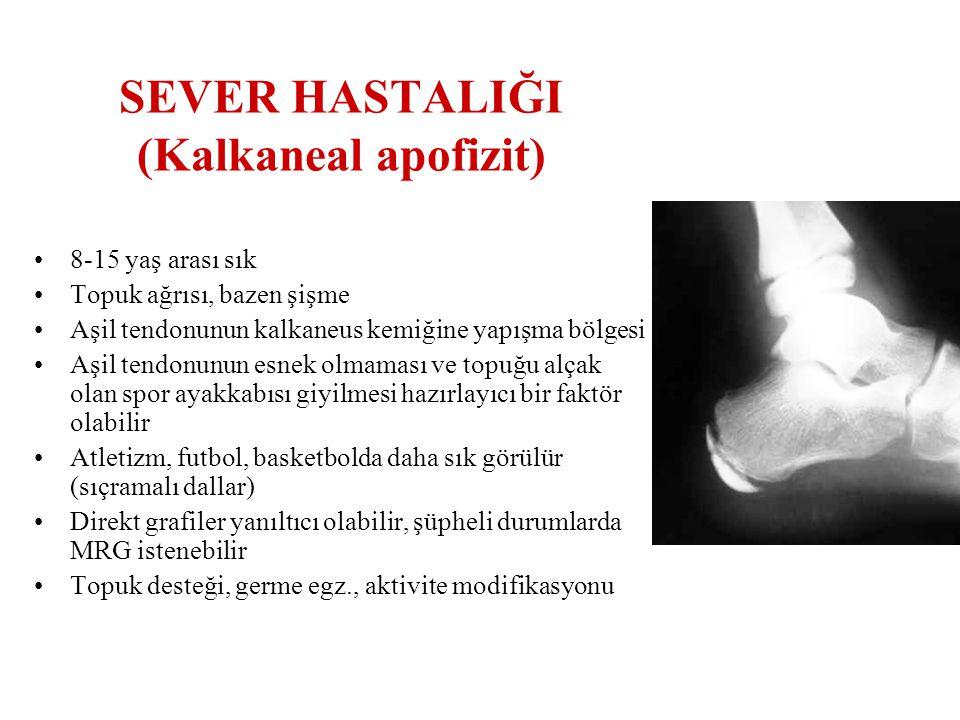 SEVER HASTALIĞI (Kalkaneal apofizit) 8-15 yaş arası sık Topuk ağrısı, bazen şişme Aşil tendonunun kalkaneus kemiğine yapışma bölgesi Aşil tendonunun e