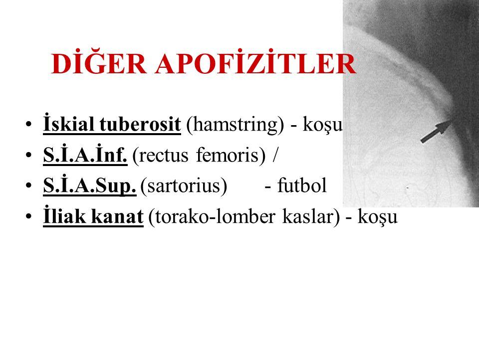 DİĞER APOFİZİTLER İskial tuberosit (hamstring) - koşu S.İ.A.İnf. (rectus femoris) / S.İ.A.Sup. (sartorius)- futbol İliak kanat (torako-lomber kaslar)