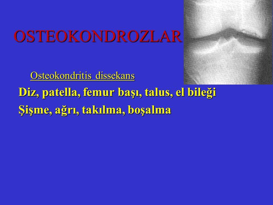 Osteokondritis dissekans Diz, patella, femur başı, talus, el bileği Şişme, ağrı, takılma, boşalma OSTEOKONDROZLAR