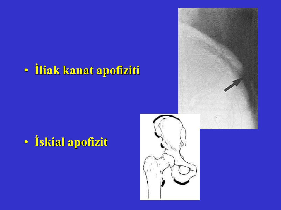 İliak kanat apofizitiİliak kanat apofiziti İskial apofizitİskial apofizit