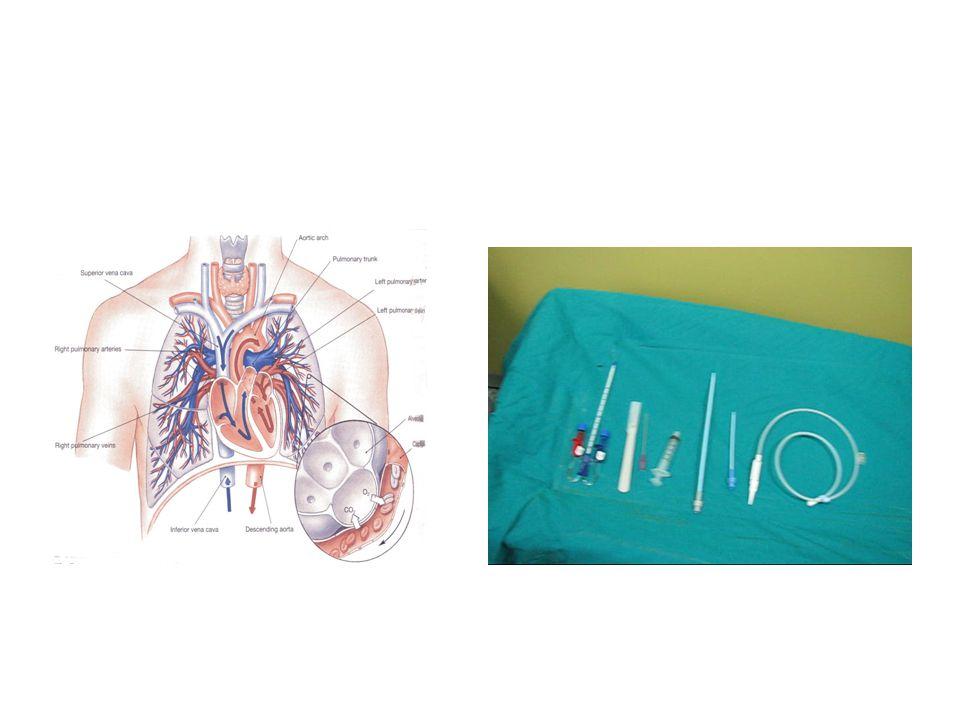 Kateter komplikasyonları Mekanik Enfeksiyon Tromboz