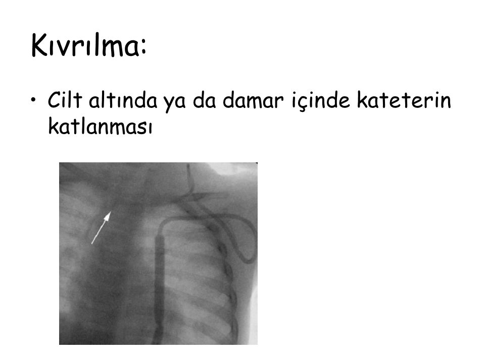Kıvrılma: Cilt altında ya da damar içinde kateterin katlanması