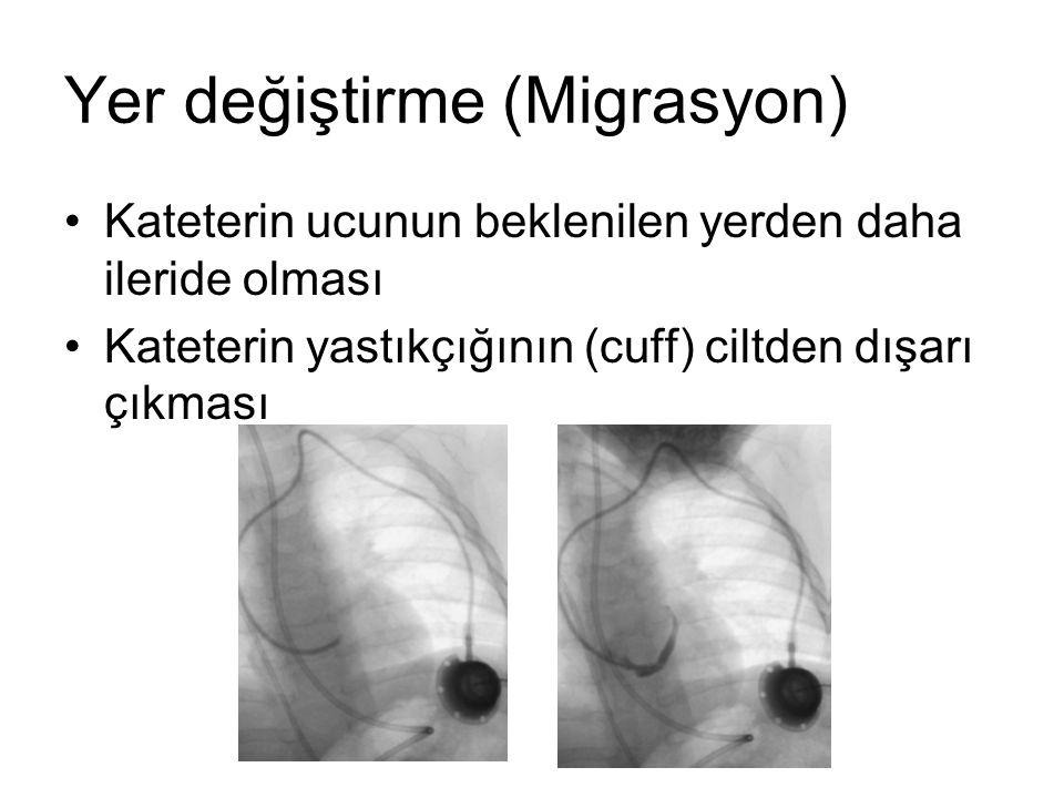 Tedavi –Arter ponksiyonu –Ağrı –Kanama –Damarın bulunamaması –Pnömotoraks –Hidrotoraks –Şilotoraks –Hava embolisi İyi bir analjezi ve anestezi Kanama kontrolü Uygun yer seçimi, usg Göğüs tüpü Solunum fonksiyonlarının takibi