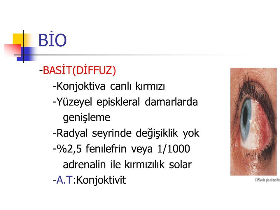 BİO -BASİT(DİFFUZ) -Konjoktiva canlı kırmızı -Yüzeyel episkleral damarlarda genişleme -Radyal seyrinde değişiklik yok -%2,5 fenılefrin veya 1/1000 adr