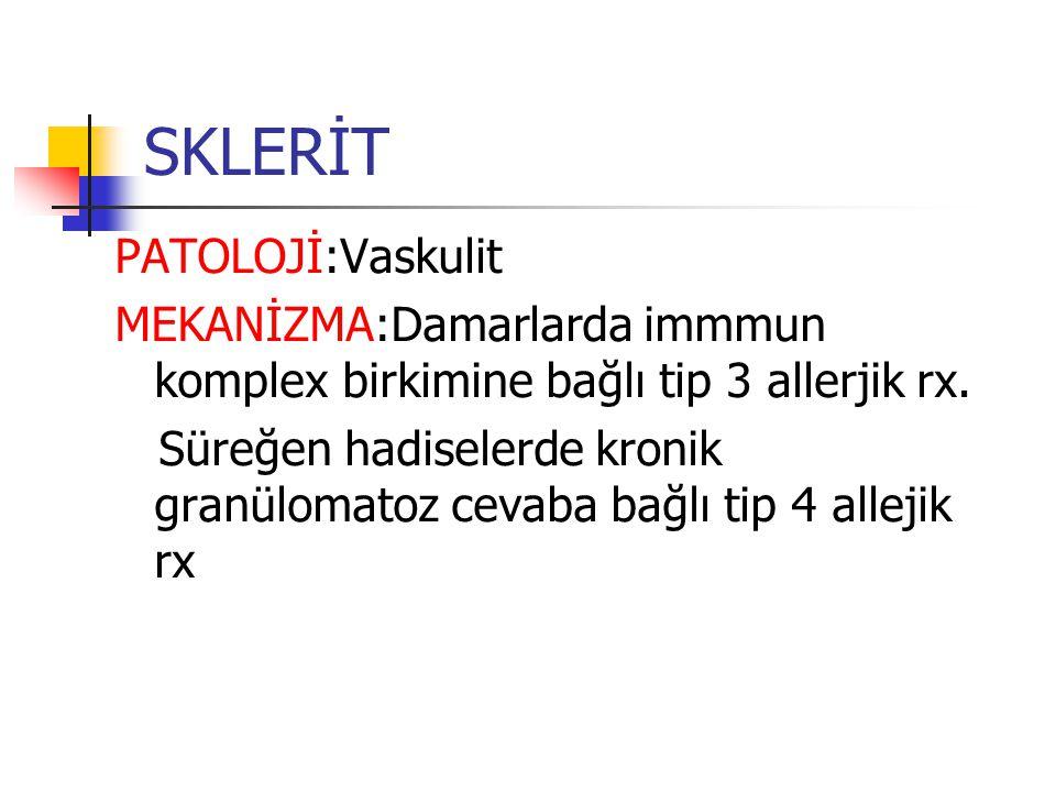 SKLERİT PATOLOJİ:Vaskulit MEKANİZMA:Damarlarda immmun komplex birkimine bağlı tip 3 allerjik rx. Süreğen hadiselerde kronik granülomatoz cevaba bağlı