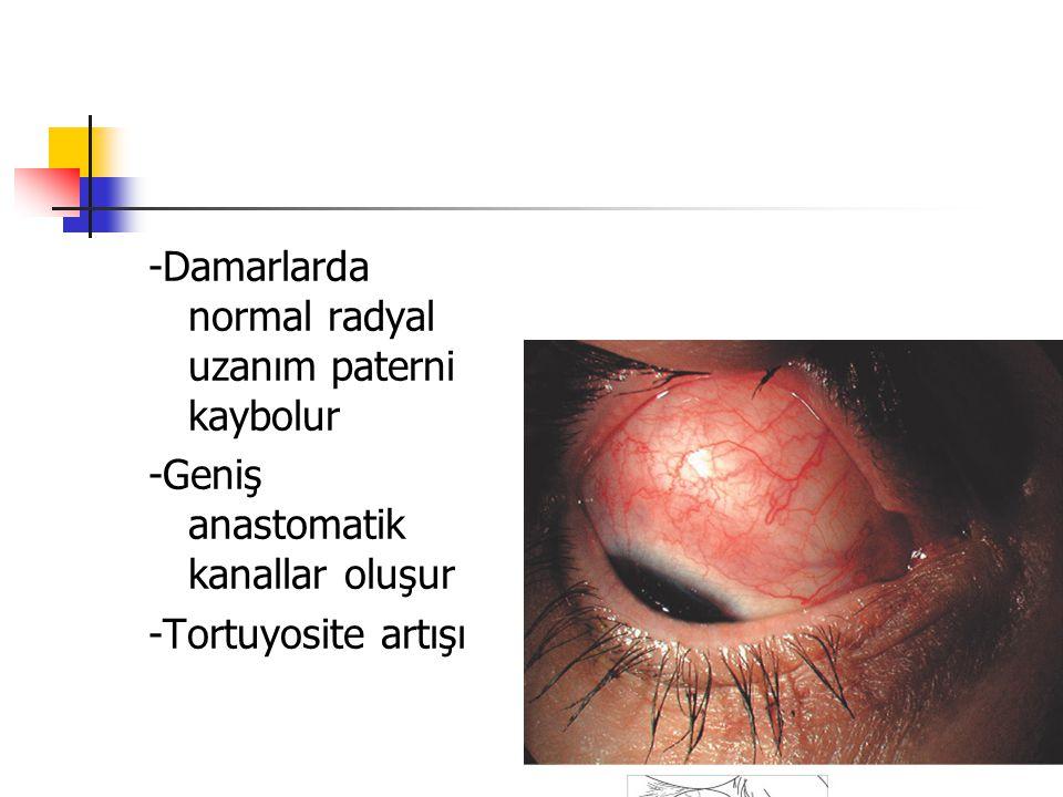 -Damarlarda normal radyal uzanım paterni kaybolur -Geniş anastomatik kanallar oluşur -Tortuyosite artışı