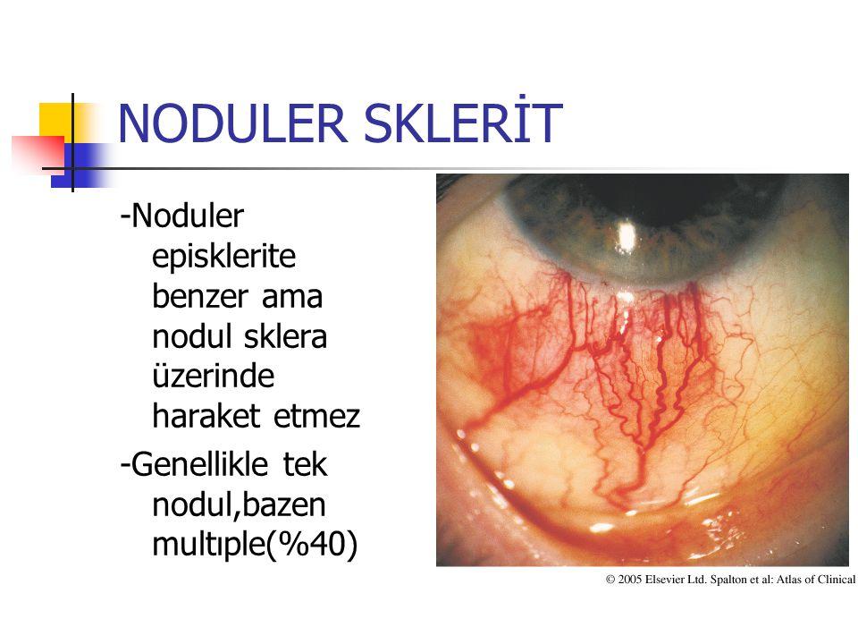 NODULER SKLERİT -Noduler episklerite benzer ama nodul sklera üzerinde haraket etmez -Genellikle tek nodul,bazen multıple(%40)