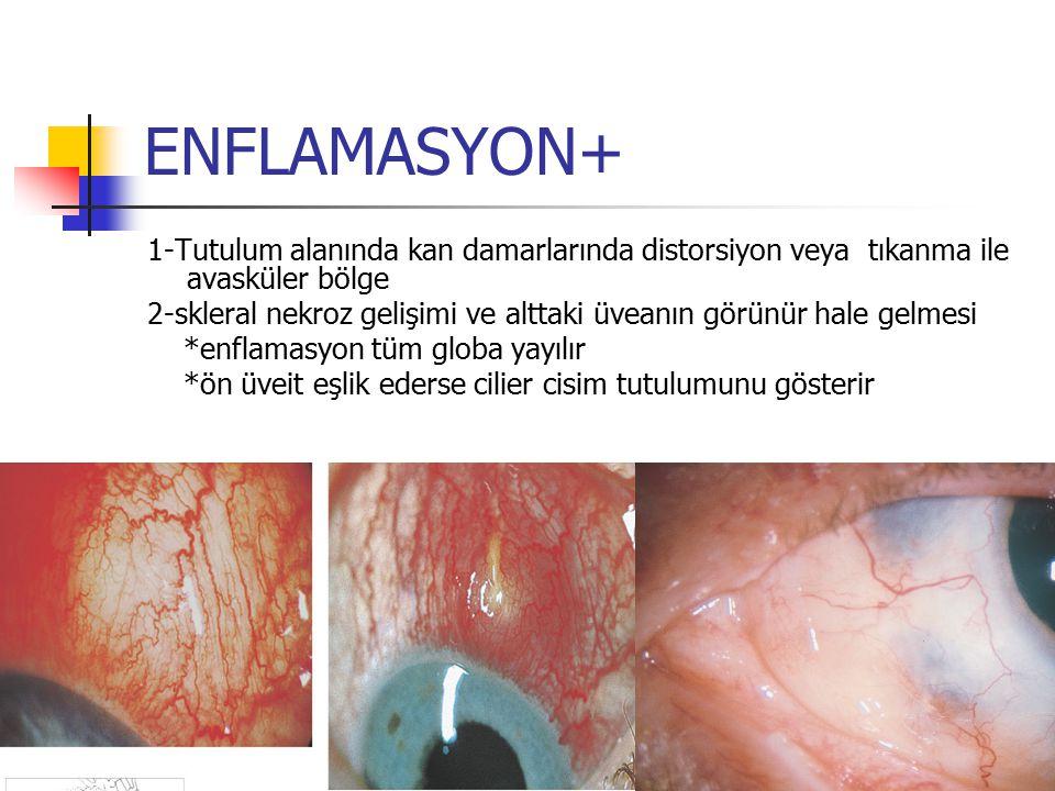 ENFLAMASYON+ 1-Tutulum alanında kan damarlarında distorsiyon veya tıkanma ile avasküler bölge 2-skleral nekroz gelişimi ve alttaki üveanın görünür hal