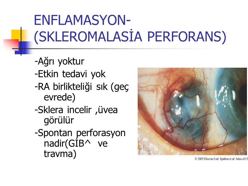 ENFLAMASYON- (SKLEROMALASİA PERFORANS) -Ağrı yoktur -Etkin tedavi yok -RA birlikteliği sık (geç evrede) -Sklera incelir,üvea görülür -Spontan perforas