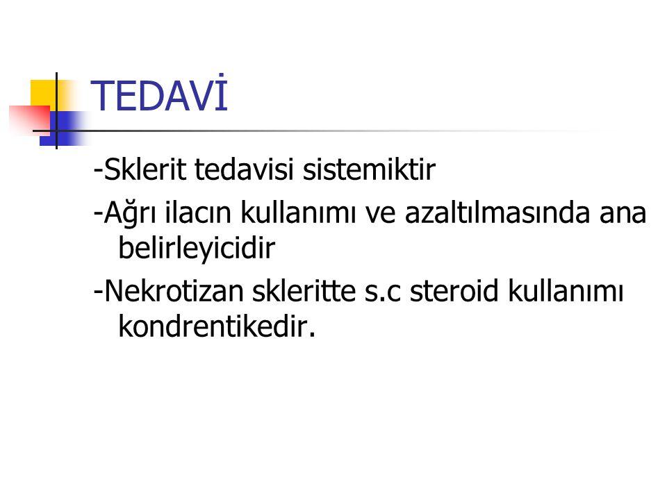 TEDAVİ -Sklerit tedavisi sistemiktir -Ağrı ilacın kullanımı ve azaltılmasında ana belirleyicidir -Nekrotizan skleritte s.c steroid kullanımı kondrenti