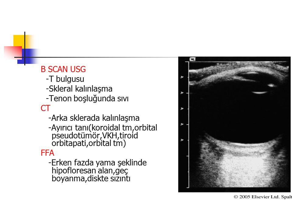 B SCAN USG -T bulgusu -Skleral kalınlaşma -Tenon boşluğunda sıvı CT -Arka sklerada kalınlaşma -Ayırıcı tanı(koroidal tm,orbital pseudotümör,VKH,tiroid
