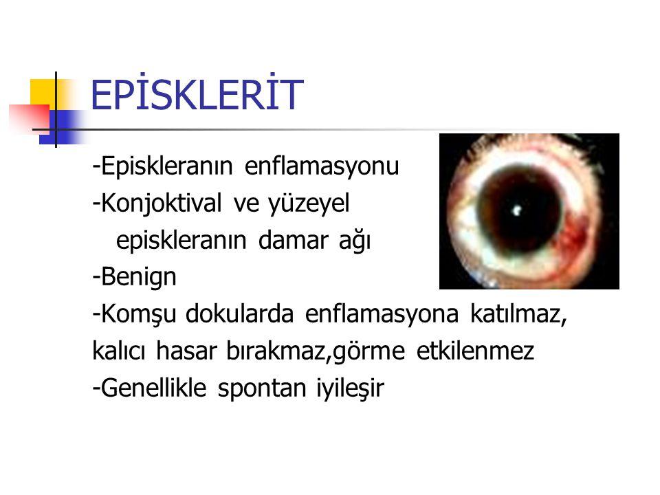 EPİSKLERİT -Episkleranın enflamasyonu -Konjoktival ve yüzeyel episkleranın damar ağı -Benign -Komşu dokularda enflamasyona katılmaz, kalıcı hasar bıra