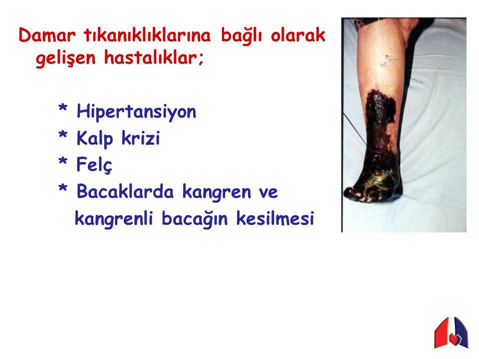 Damar tıkanıklıklarına bağlı olarak gelişen hastalıklar; * Hipertansiyon * Kalp krizi * Felç * Bacaklarda kangren ve kangrenli bacağın kesilmesi