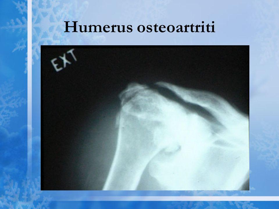 Humerus osteoartriti