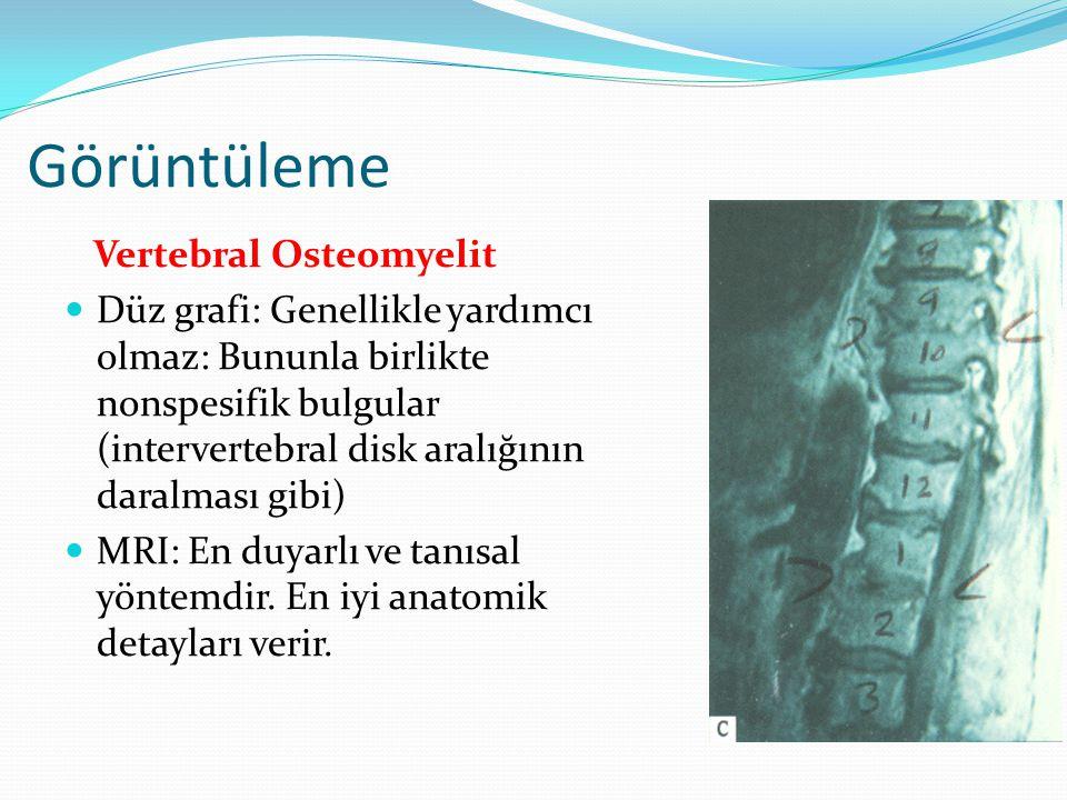 Görüntüleme Vertebral Osteomyelit Düz grafi: Genellikle yardımcı olmaz: Bununla birlikte nonspesifik bulgular (intervertebral disk aralığının daralması gibi) MRI: En duyarlı ve tanısal yöntemdir.