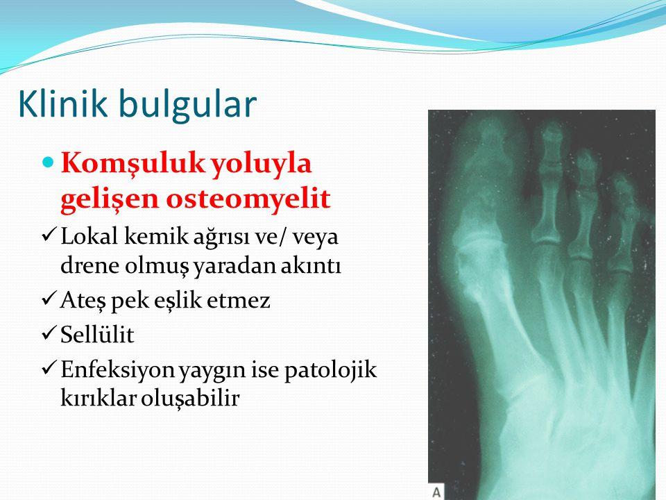 Klinik bulgular Komşuluk yoluyla gelişen osteomyelit Lokal kemik ağrısı ve/ veya drene olmuş yaradan akıntı Ateş pek eşlik etmez Sellülit Enfeksiyon yaygın ise patolojik kırıklar oluşabilir