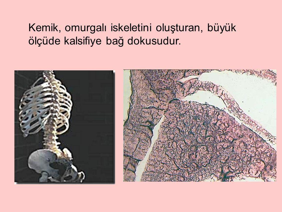 Intramembranous (flat bones)