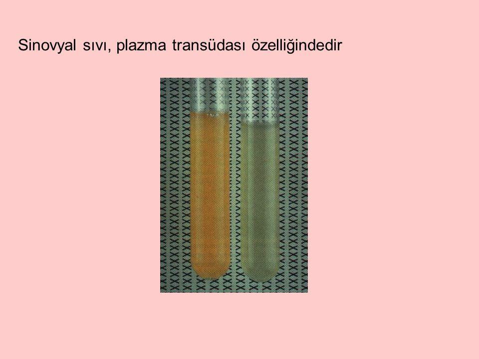 Sinovyal sıvı, plazma transüdası özelliğindedir