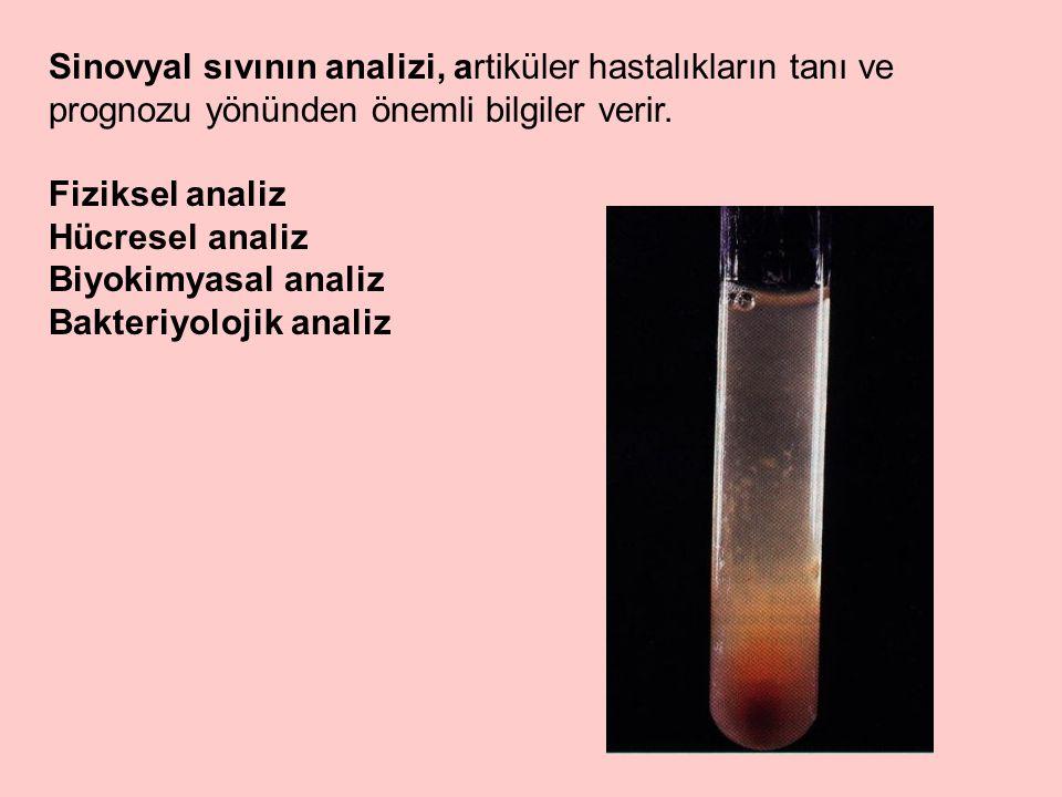 Sinovyal sıvının analizi, artiküler hastalıkların tanı ve prognozu yönünden önemli bilgiler verir.