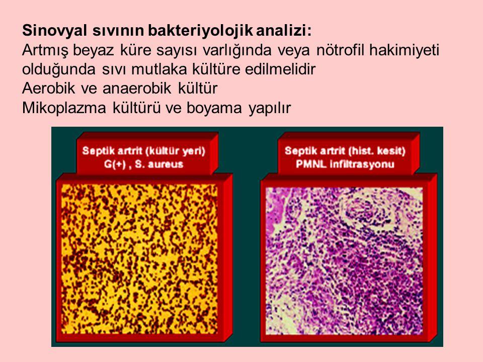 Sinovyal sıvının bakteriyolojik analizi: Artmış beyaz küre sayısı varlığında veya nötrofil hakimiyeti olduğunda sıvı mutlaka kültüre edilmelidir Aerobik ve anaerobik kültür Mikoplazma kültürü ve boyama yapılır
