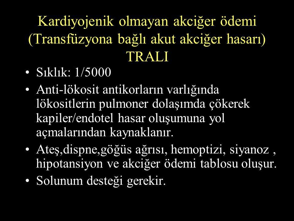 Kardiyojenik olmayan akciğer ödemi (Transfüzyona bağlı akut akciğer hasarı) TRALI Sıklık: 1/5000 Anti-lökosit antikorların varlığında lökositlerin pul