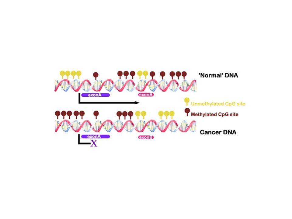 Hipermetilasyon tümör süpresör genlerin promoter bölgelerinde meydana gelir Birçok neoplazide p16INK4a ve p15INK4b en sık hipermetile olan genlerdir Quesnel, et al.